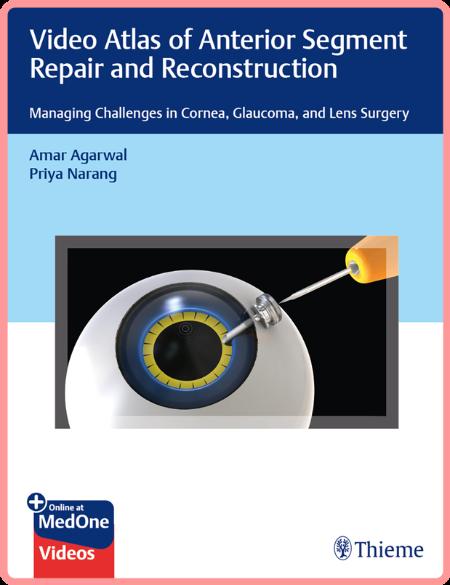 Video Atlas of Anterior Segment Repair and Reconstruction